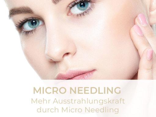 Micro-Needling | Anti Aging | Hautregeneration | Glatte Haut
